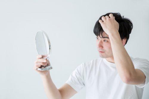 円形脱毛を気にする男性