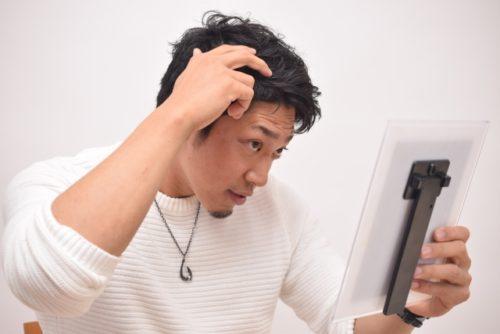 薄毛が気になる男性